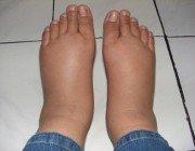 Отеки ног при сахарном диабете: что делать если отекают ноги?