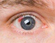 Отмечаются ли заболевания глаз у больных сахарным диабетом?