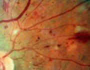 Ретинопатия при сахарном диабете и ее особенности