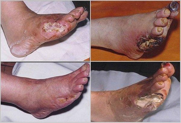 признаки гангрены ноги при сахарном диабете