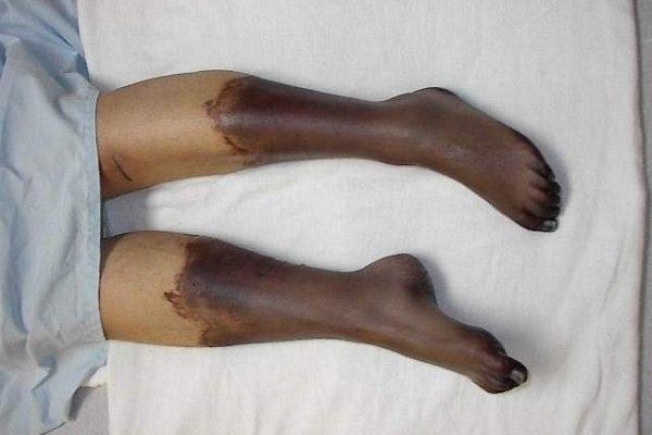 гангрена на ноге при сахарном диабете
