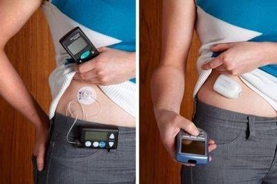 Инсулиновая помпа от диабета что это