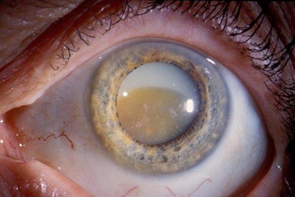 Катаракта - заболевание глаз при диабете