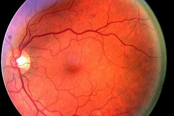 Диабетическая ретинопатия - осложнение глаз при сахарном диабете