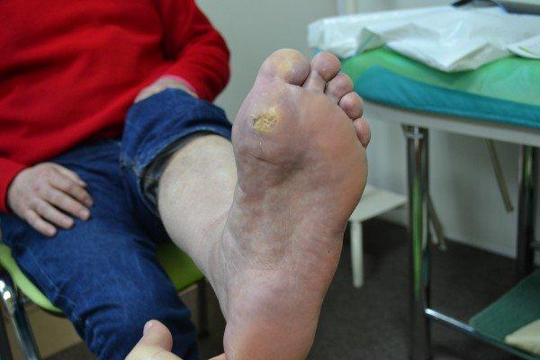 симптомы синдрома диабетической стопы