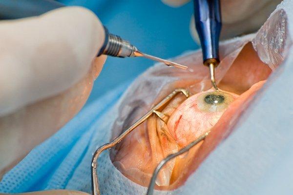 катаракта от диабета