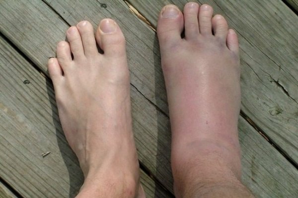отеки ног при диабете фото