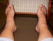 Как лечить отек ног при диабете?