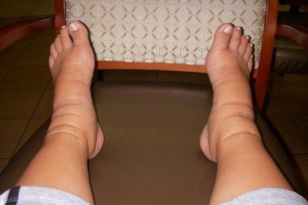 Отеки ног при сахарном диабете 1 и 2 типа: причины и лечение