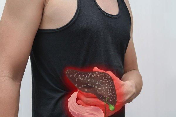 Цирроз печени при сахарном диабете