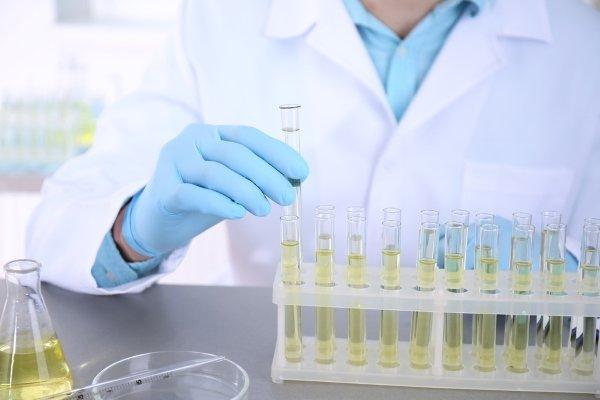 Анализ мочи в лаборатории