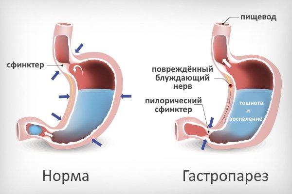 Гастропарез желудка